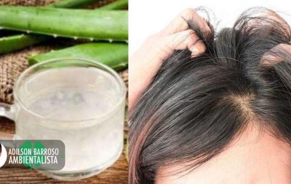 Coceira no couro cabeludo: remédios para aliviá-la