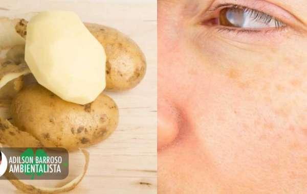 Remédios com casca de batata que são incríveis e promovem desintoxicação